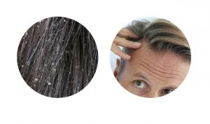 Pro-Hair 10, originale, in farmacia, Italia