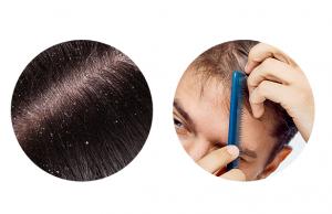 Pro-Hair 10, prezzo, dove si compra, amazon, farmacia
