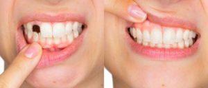 Happy Smile, composizione, ingredienti, funziona, come si usa