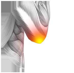 Osteodol, controindicazioni, effetti collaterali