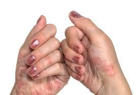 Mycelix, controindicazioni, effetti collaterali