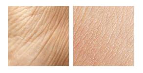 Nolatreve Skin, in farmacia, Italia, originale