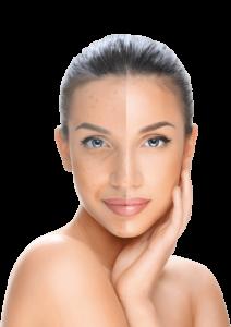 Hyaluronic Face, come si usa, ingredienti, composizione, funziona