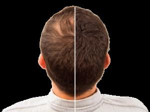 Hair Intense, effetti collaterali, controindicazioni, controindicazioni